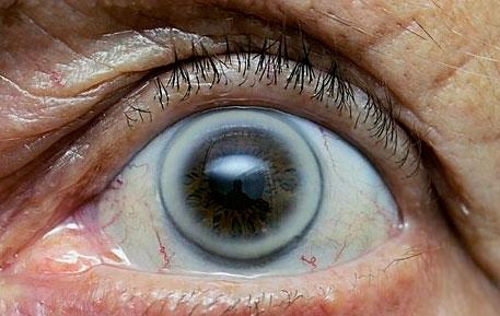 Test Myopie Hypermetropie Hyperopia Farsightedness